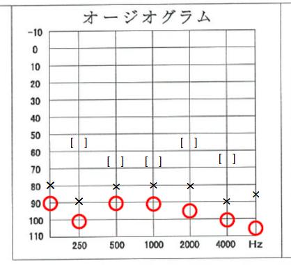 オージオグラム記入例